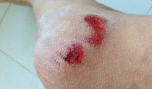 Zappi's Pro Cycling: James Hill's Rider Blog- Road Rash